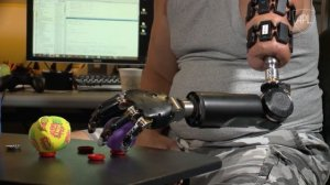 To Make Prostheses Better, They Have To Talk Back
